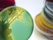 Minimizing Contamination in Cell Culture Laboratories