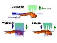 Selective Plane Illumination Microscopy