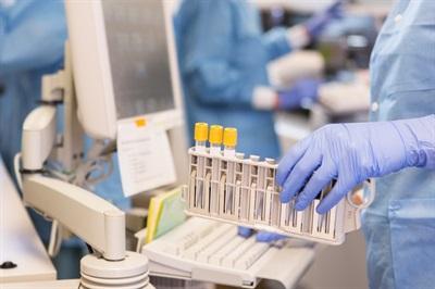 临床化学分析仪