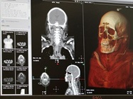 Medical Investigator Database Boasts Nearly 20,000 Full-body CT Scans, Wealth of Information